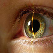 Laser correction restores sight, but does not suit everyone