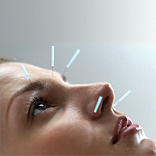 Acupuncture helps in the fight against overweight, but is not suitable for people with a low pain threshold