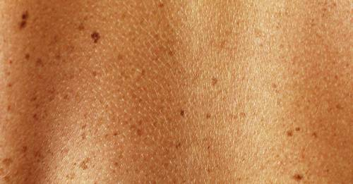 The ultimate guide to moles