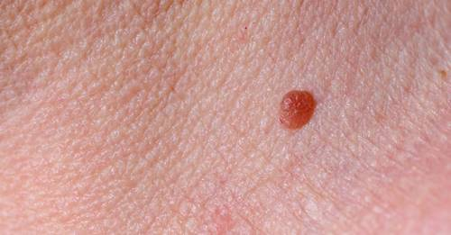 Your fail-safe guide to skin tags from an expert dermatologist