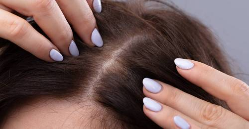 I recently came off the pill and experienced a dry scalp for the first time in my life