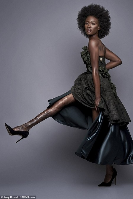 Berlange Presilus, who hid her 'ugly' leg for 14 years after being mocked by bullies, is showing off her 'flawed' limb in a photo shoot to encourage others to embrace their differences