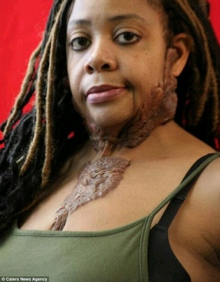 Iris Hudsonclaims the beard-like mass of painful growths on her face have ruined her marriage