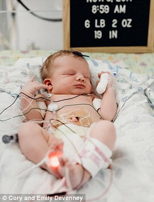 Right after she was born Everly was hooked up to multiple tubes and wires to monitor her condition