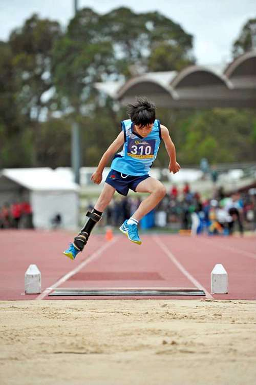 Daniel still uses a prosthetic but his leg lengthening surgery has so far been successful