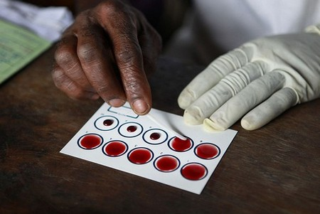 A medic testing blood samples for sleeping sickness or human trypanosomiasis disease in Kitoy, DRC.
