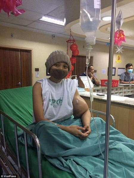 She faced 17 rounds of chemotherapy, however, extreme weakness left her unable to cope