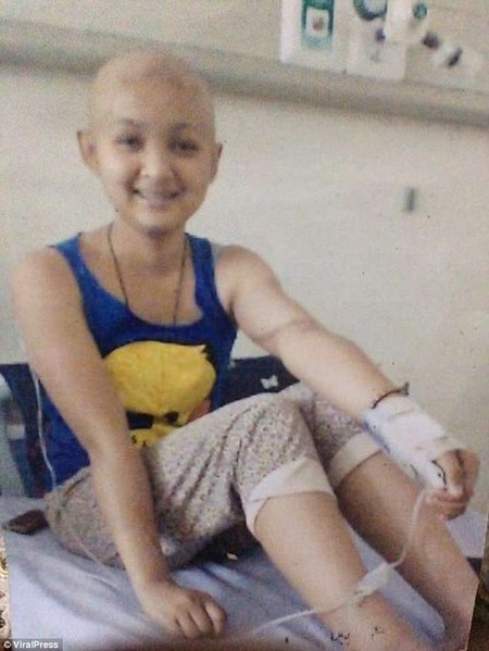 Ms Arcilla, who lost her hair during chemotherapy, was too upset to continue treatment