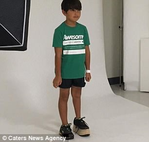 Keanu was born with a congenital birth defect that left one leg shorter than the other