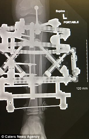 Doctors installed an Ilizarov apparatus - an external circular medal device connected to the fibula and tibia bones