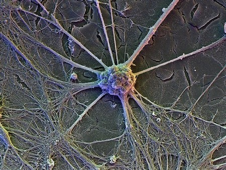 A nerve cell is pictured in rainbow colours on a grey background: a central blob of matter with tendrils extending outwards.