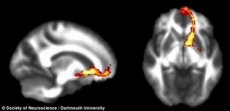 Dartmouth University researchers found that when people describe themselves confidently, the frontostriatal pathway of the brain is activated (shown in red and yellow)