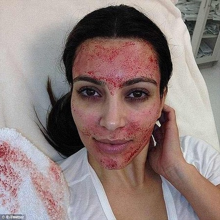 Platelet-rich plasma (PRP), as it is really known, has soared in popularity since Kim Kardashian was pictured undergoing it in 2013 (pictured then)