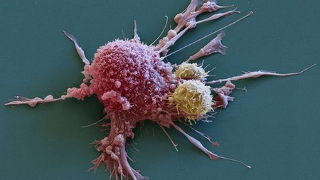 Breast cancer cell being attacked by CAR T-cell