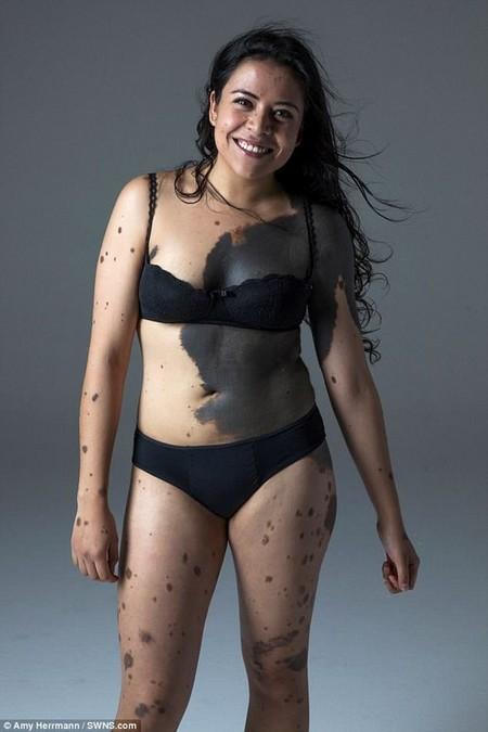 Lorena Bolanos, 24, from Mexico, was branded a 'chocolate chip cookie' by cruel bullies because of her birthmarks. She has now stripped off to promote body positivity