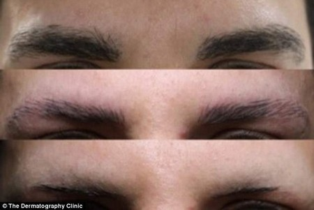An anonymous patient suffering from trichotillomania told of how he was at an 'all-time low' before a procedure to give him new eyebrows