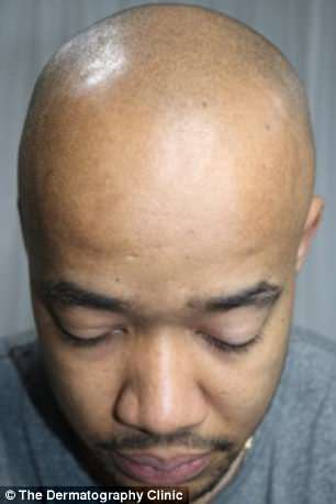 A 28-year-old alopecia sufferer, who remains anonymous, underwent scalp micropigmentation - and it has transformed his life