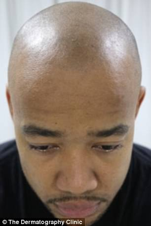He revealed he suffered 'terribly' from a lack of confidence before the procedure, which plants tiny dots of ink into the skin, imitating the look of hair follicles