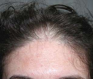 One patient's thinning hair was causing him distress