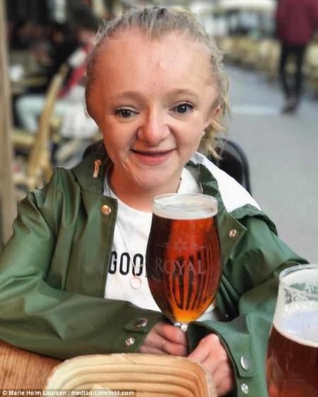 Fighting through: Marie Holm Laursen, from Denmark, has broken 500 bones in her lifetime