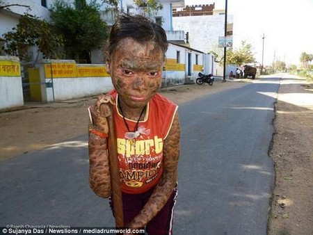 Vedika Gupta, cruelly known as Snake Girl, is forced to live as a recluse due to a condition that causes her skin to crack, flake off and even bleed when it is exposed to sunlight