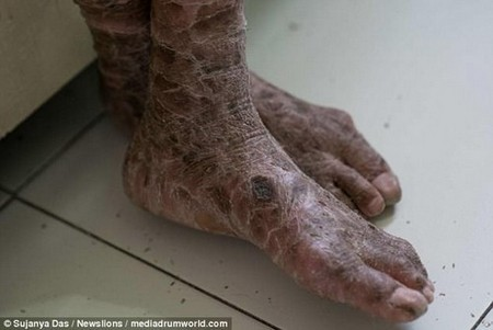 Vedika's skin itches constantly and bleeds between the cracks due to extreme dryness