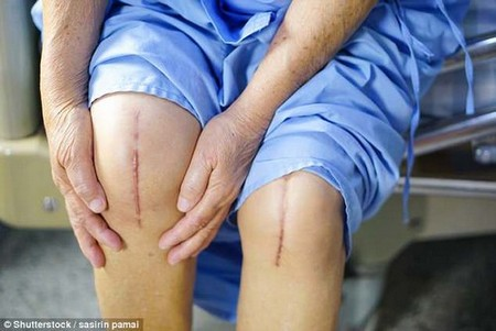 People who need partial, as opposed to full, knee replacements, typically find walking on the flat comfortable, but going upstairs or up slopes and rising from chairs is painful because it's the underside of the kneecap that's affected