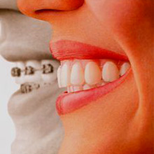 Equalizing teeth requires a lot of investment and careful care