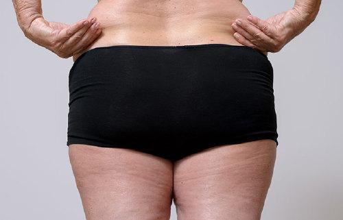 3. Lower Body Fat
