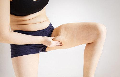 5. Fat In The Legs