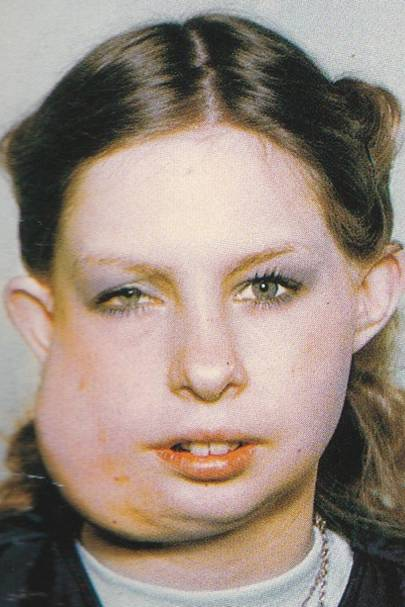 What my battle with facial disfigurement has taught me about beauty