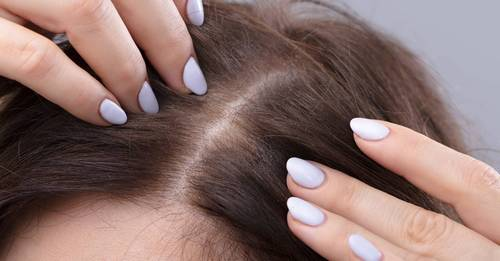 Skincare is coming for your scalp – here's how to give it the TLC it deserves