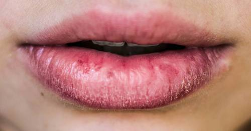 How to treat painful eczema on your lips