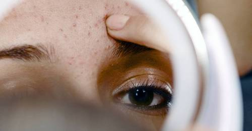 So you popped a pimple… here's how to deal with the aftermath